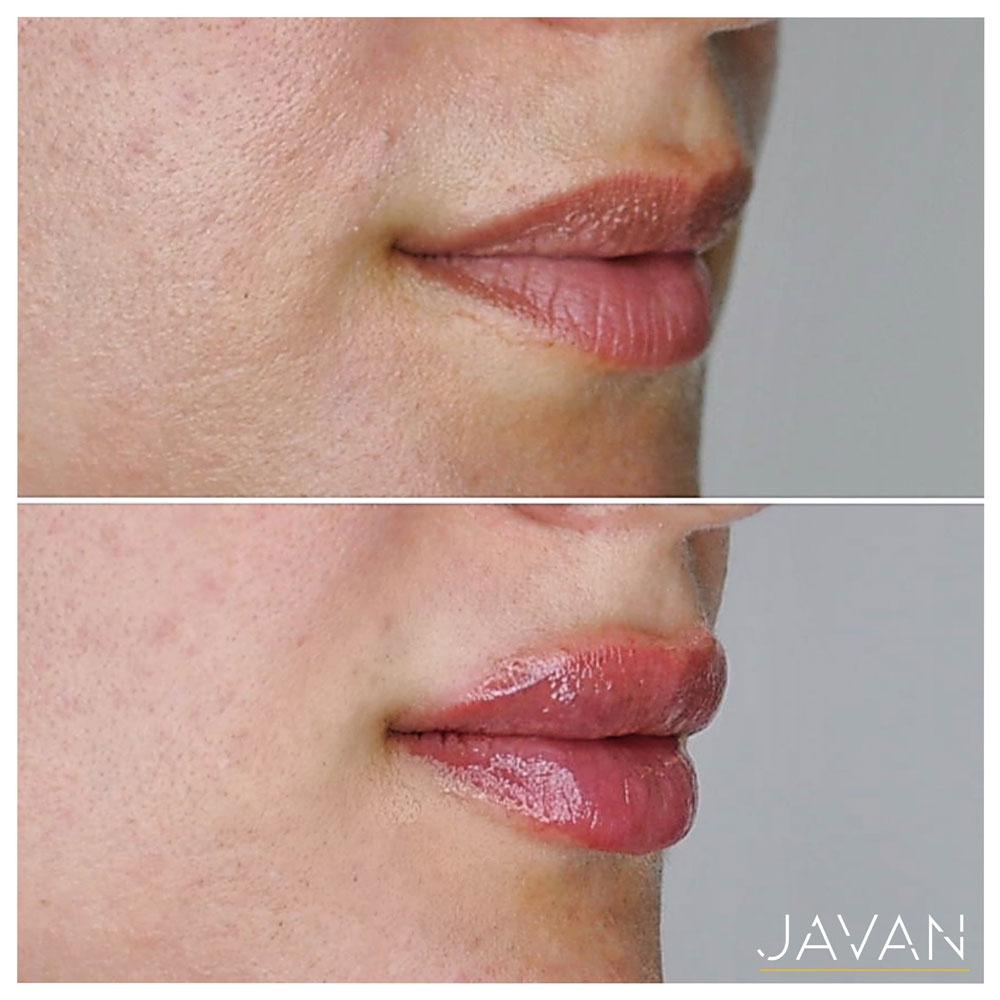 Dermal Filler Lips 1