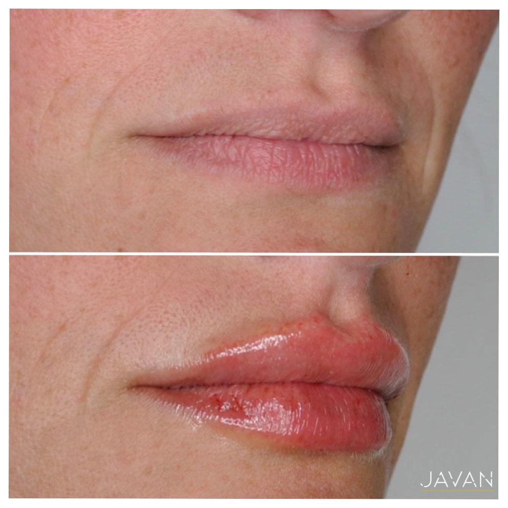 Dermal Filler Lips 2