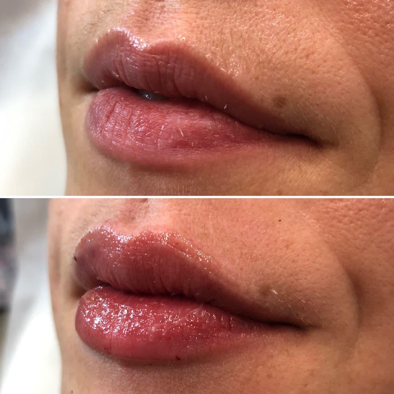 Dermal Filler Lips 3
