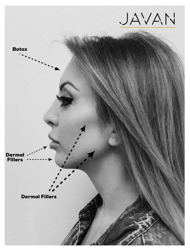 derma-fillers-1