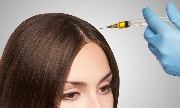 hair-loss-treatments-1