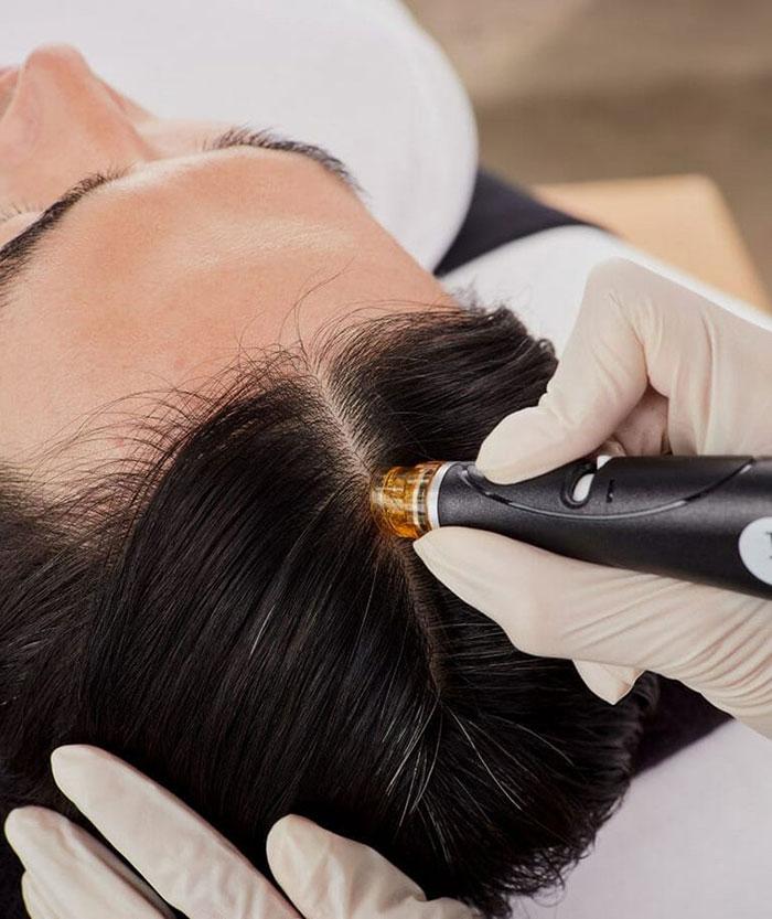 hair-loss-treatments-2